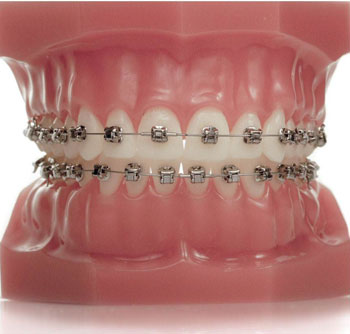 A model of braces created with our orthodontic treatments in Cranbrook
