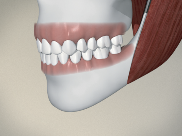 tooth extraction recovery instructions